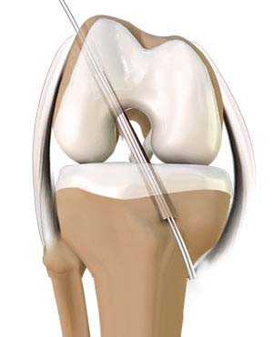 Lateral Approach Total Knee Replacements